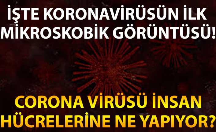 İşte koronavirüsün ilk mikroskobik görüntüsü! Corona virüsü insan hücrelerine ne yapıyor?