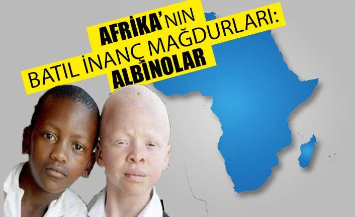 Afrika'nın batıl inanç mağdurları: Albinolar