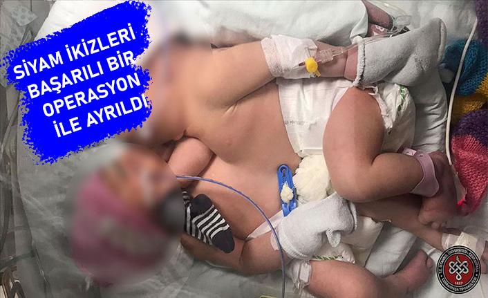 Karın ve göğüsten yapışık ikizler 11 saatlik operasyonla ayrıldı