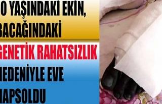 10 yaşındaki Ekin, bacağındaki genetik rahatsızlık...